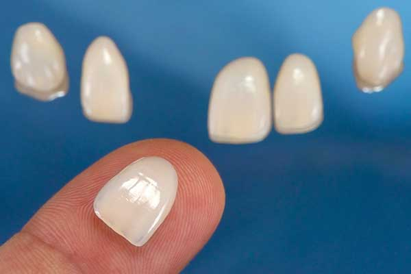 Porcelain Veneers in East Longmeadow, MA