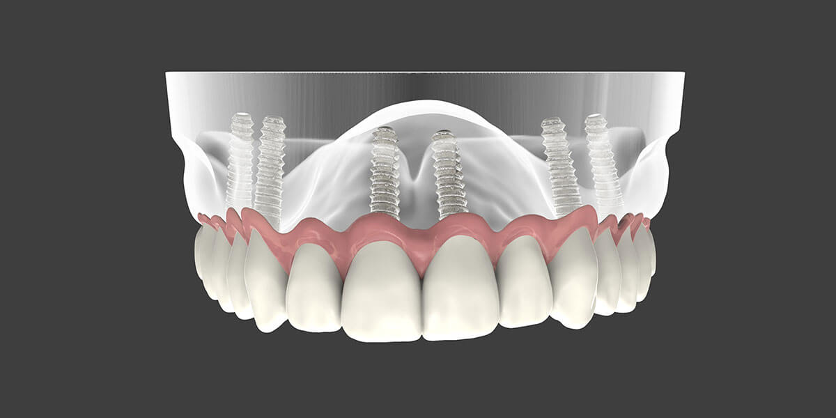 Dental Implant Supported Dentures in East Longmeadow