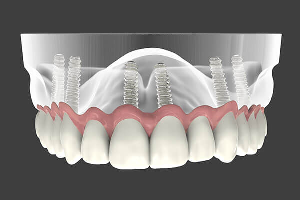 Implant Supported Dentures in East Longmeadow, MA