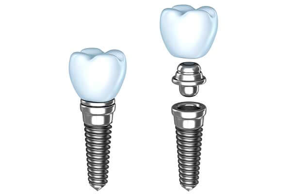 Single Dental implants in East Longmeadow, MA