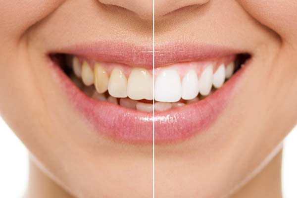 Before & After Teeth Whitening in East Longmeadow, MA
